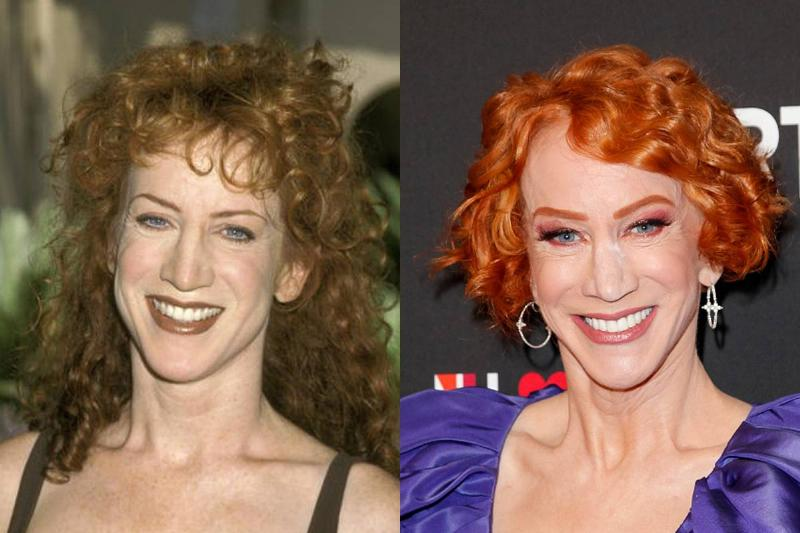 kathy-griffin-before-after-plastic-surgery