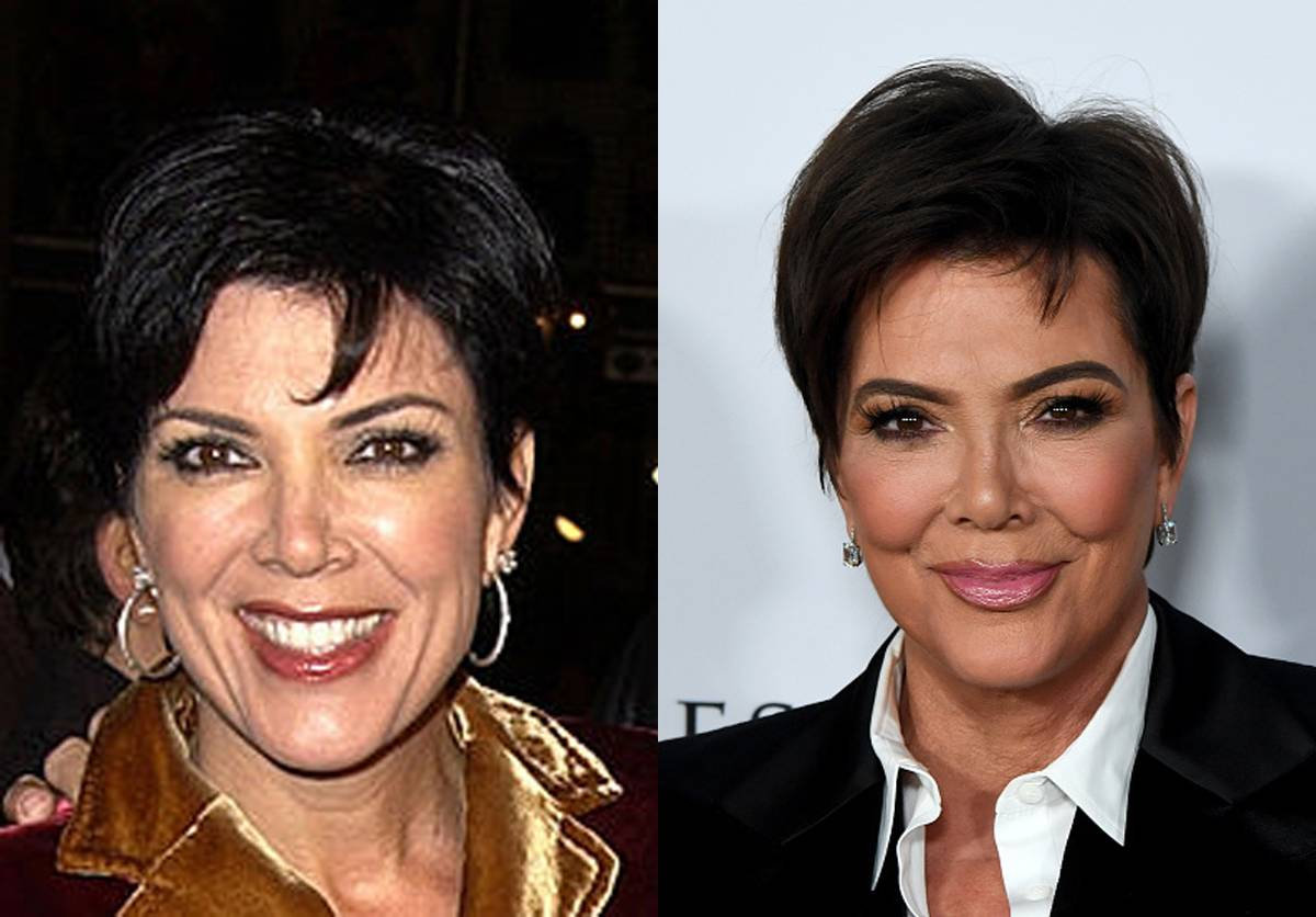 kris-jenner-before-after-plastic-surgery
