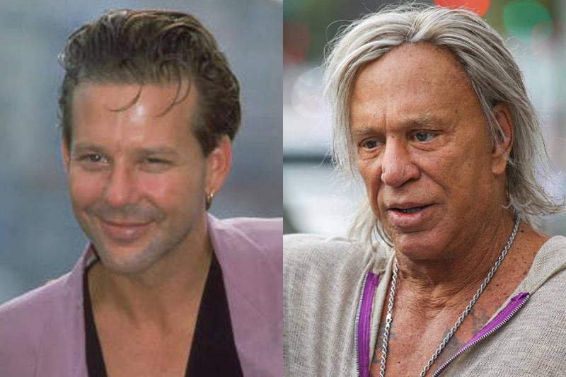 mickey-rourke-before-after-plastic-surgery