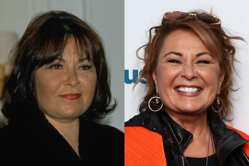 rosanne-barr-before-after-plastic-surgery