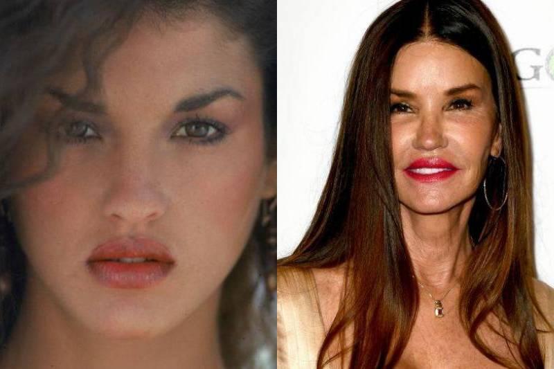janice-dickinson-plastic-surgery