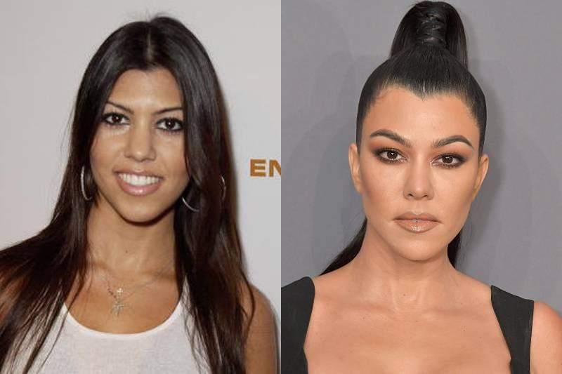 kourtney-kardashian-plastic-surgery