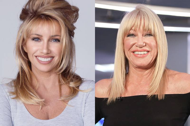 suzanne-somers-plastic-surgery