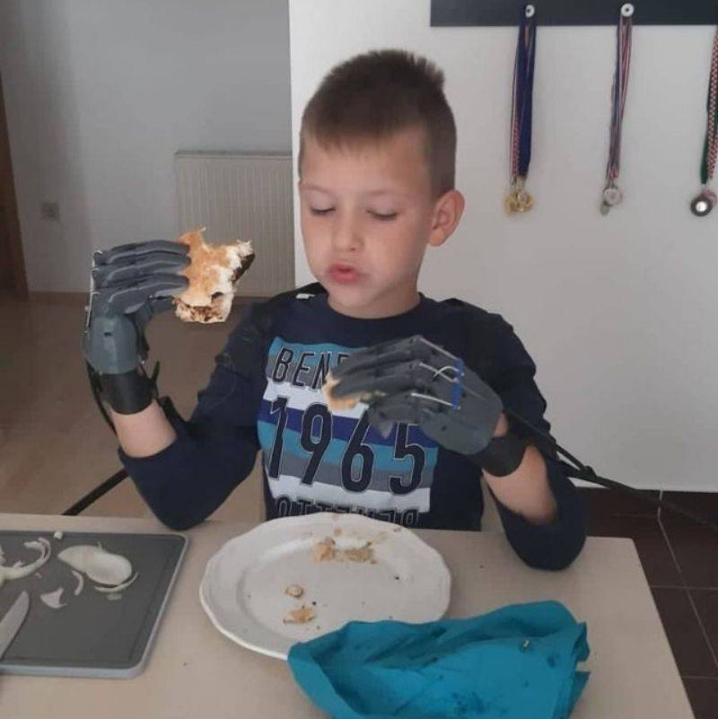 little boy eating with prosthetic hands